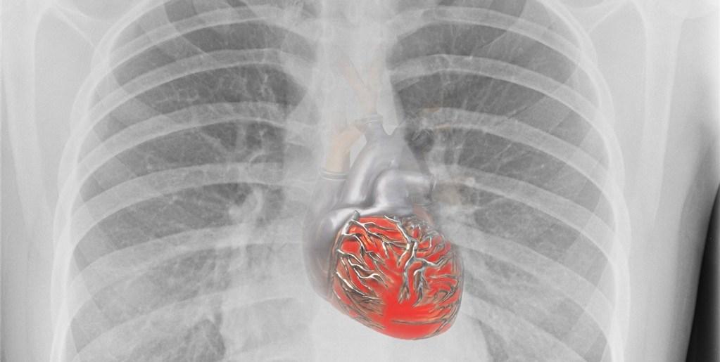 heart x ray